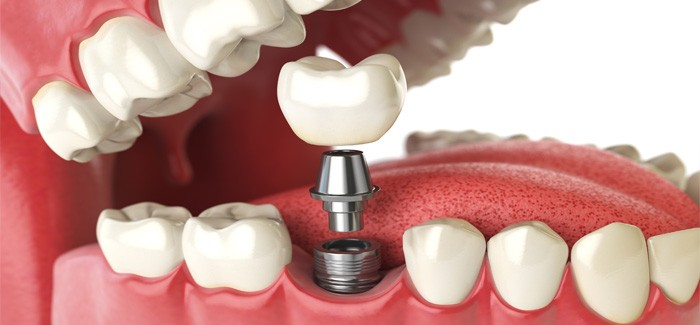 5 Questions Every Patient Should Ask Before Getting a Dental Implant